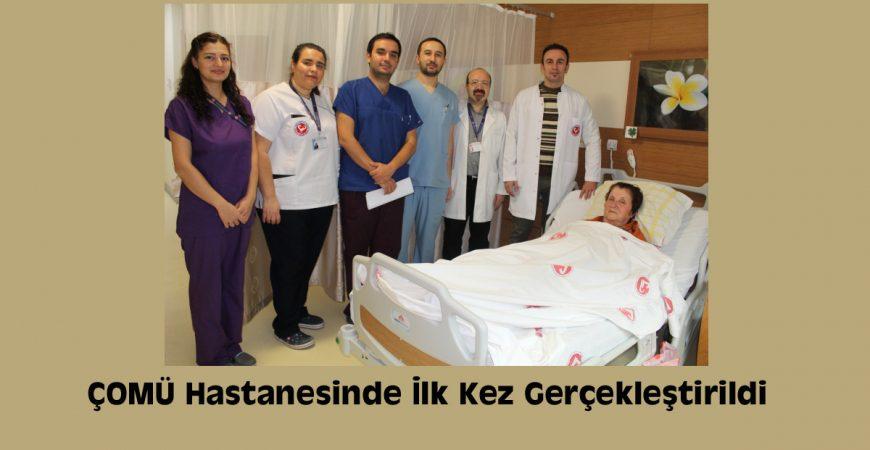 ÇOMÜ Hastanesinde İlk Kez Gerçekleştirildi